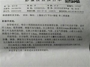 雪中送炭我因食管癌手术后无钱继续治疗,东台市东台镇人民政府临时救助我2010元钱,这真是雪中送炭,