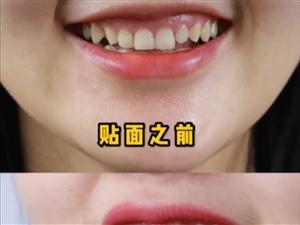 牙齿美容   美白牙齿
